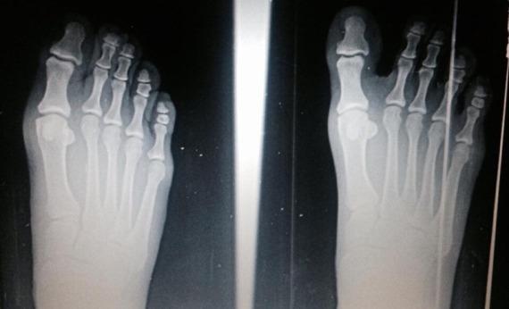 cambios-estructurales-pies