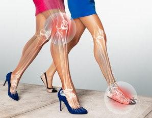 lesiones-dolor-zapato-tacon-alto1